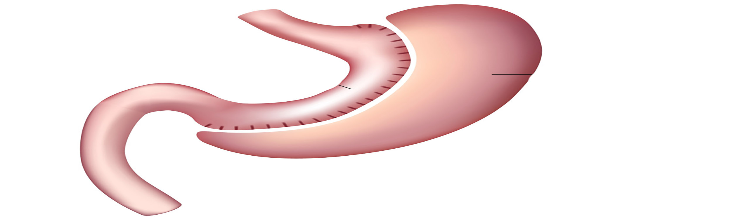 sleeve gastrectomy cost - 2550×750