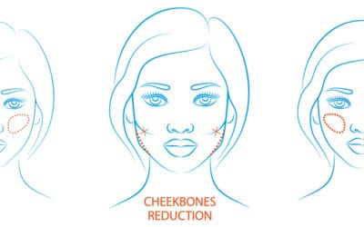 Cheekbone Reduction
